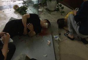 đôi nam nữ bị thương do rơi từ tầng 2 xuống tầng trệt