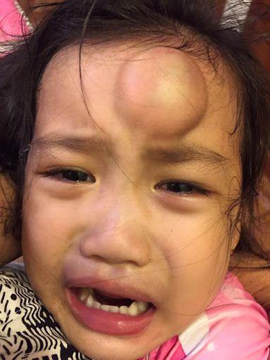em bé bị té u đầu